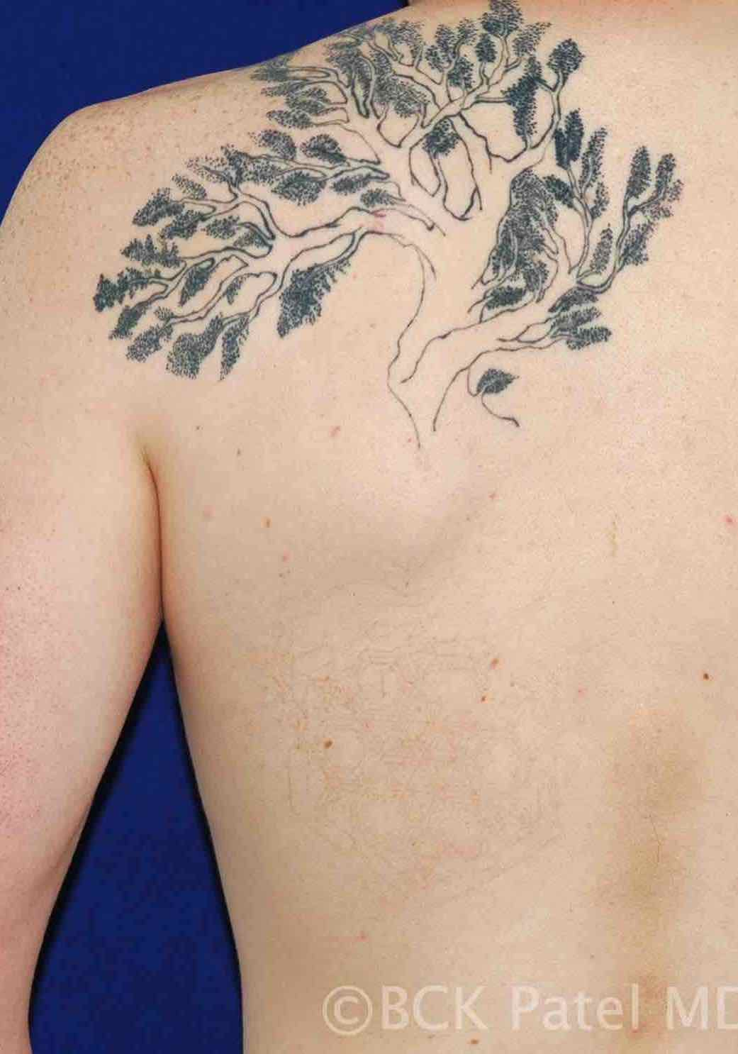 Laser tattoo removal picosecond by BCK Patel MD, FRCS