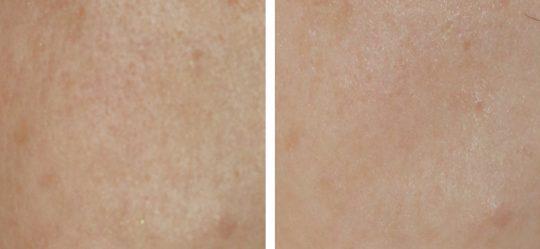 Beforeafter-Carbon-laser-for-pores-1.jpg