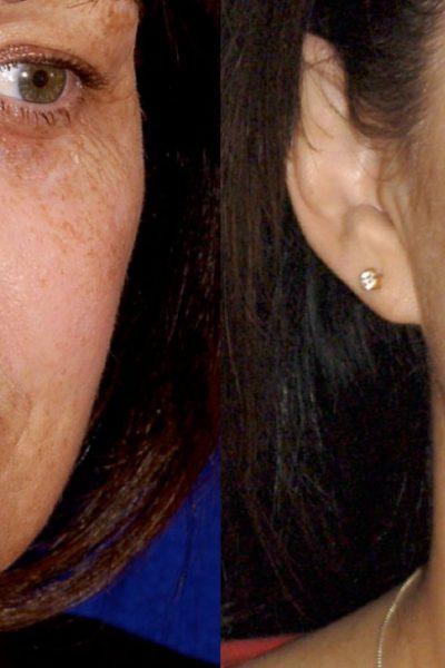 Skin-rejuvenation-before-and-after