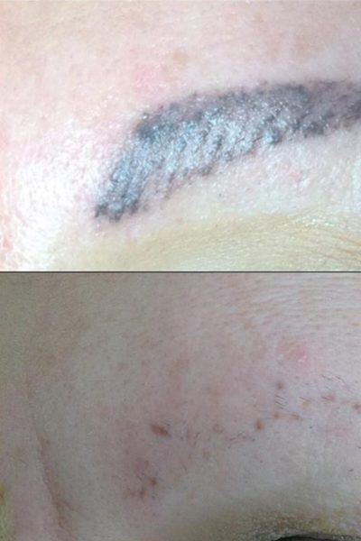 Tattoo eyebrow before-and-after-1 copy