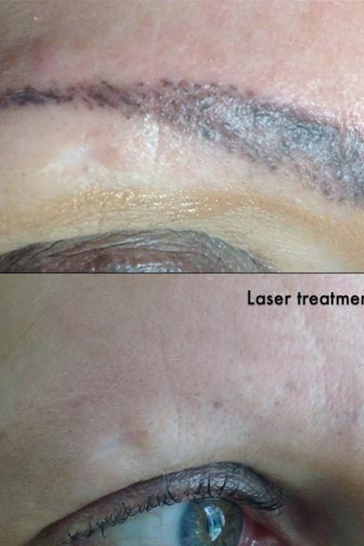 Tattoo-eyebrow-before-and-after-3