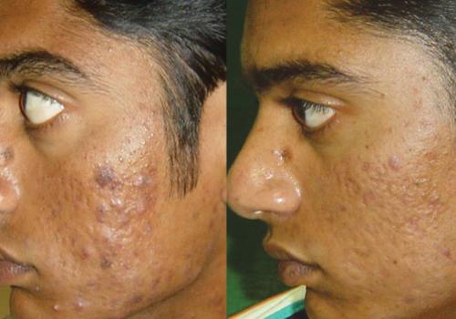 acne-erbium.png