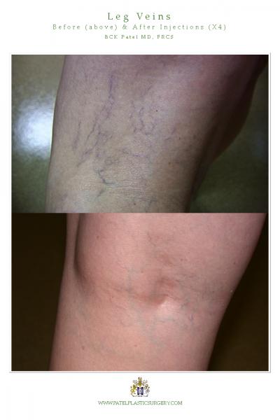 leg veins 1