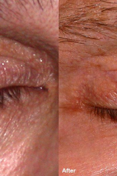 wrinckle reduction 3