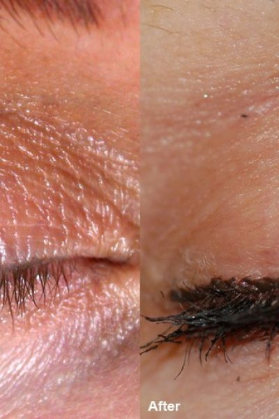 wrinckle reduction 5