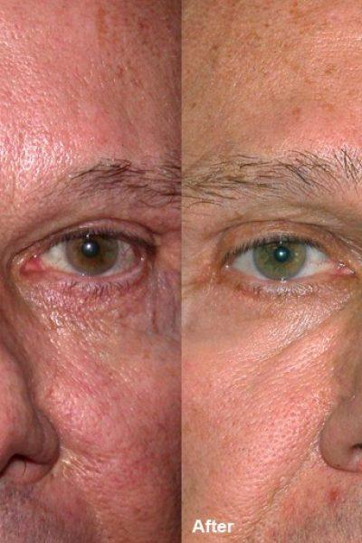 wrinckle reduction 6