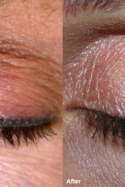 wrinckle reduction 7